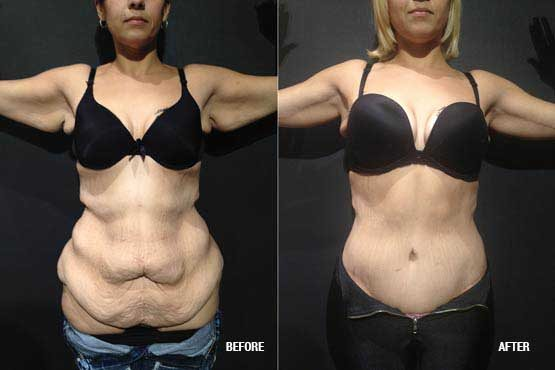 tummy tuck before after pictures